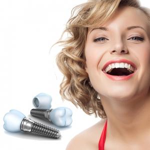 5 mituri demontate despre tratamentul cu implant dentar