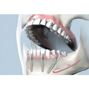 fast fixed. Green Dental completeaza gama de servicii cu FAST & FIXED – procedura implantologica pentru un zambet nou in 24 de ore