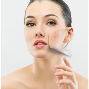 Peeling chimic – Tratament revolutionar pentru acnee si pete pigmentare
