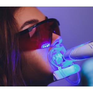 Albire dentară în Brăila – la clinica SteliDental