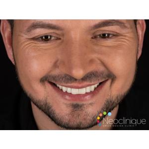 La Neoclinique, pacientul beneficiază de cea mai bună tehnologie pentru un zâmbet mai alb rapid și fără griji!