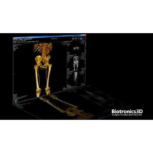 "Arta inovatiei in imagistica medicala: solutii de tip ""Cloud Computing"" de la Biotronics3D"