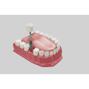 Cele mai frecvente întrebări despre implantul dentar