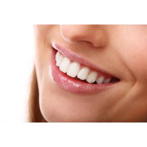 Cum menținem albul natural al dinților. Sfaturi pentru fiecare zi!