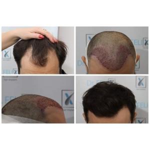 Implant de păr de calitate cu plata în rate la Dr. Felix Hair Implant!