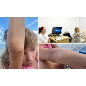 eczema. Hiperkeratoza Foliculara