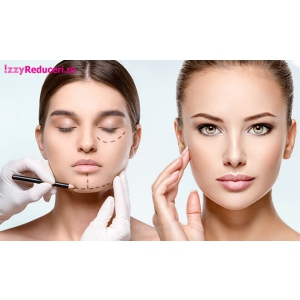 Lifting facial cu Botox, Acid Hialuronic si Fire PDO