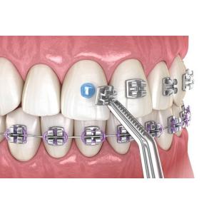 Lucruri importante pe care trebuie sa le stii inainte de a-ti pune un aparat ortodontic