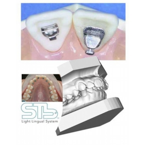 aparat dentar lingual. Aparate linguale tridimensionale STB