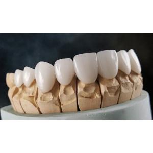 Coroana de Zirconiu - cea mai moderna abordare in lucrarile protetice dentare.