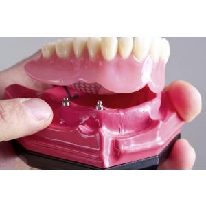 Proteza pe implante