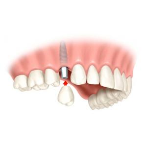 Laborator tehnica dentara Iasi. Implantologia dentara - o tehnica desavarsita la clinica Dr. Serban