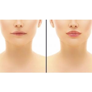 Marirea buzelor prin injectare cu acid hialuronc