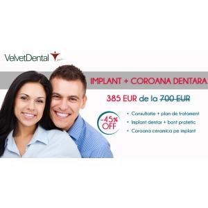 coroana metalo-ceramica. 385 EURO IMPLANT + COROANA DENTARA CERAMICA DOAR LA VELVET DENTAL